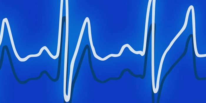 Healthcare Microgrids: A Guide to More Reliable, Clean, Lower-Cost Energy for Hospitals